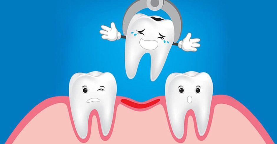брекеты удаление зубов
